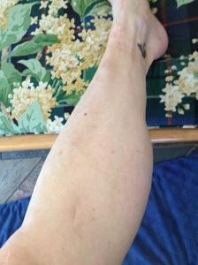 LIttle scars below my knee mark the history of titanium screws in my leg.